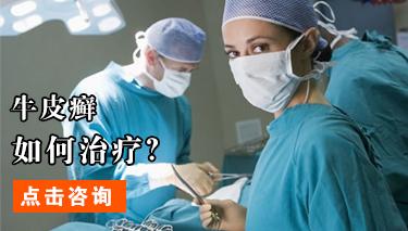 牛皮癣患者如何正确治疗