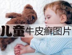 儿童牛皮癣应该怎么治?
